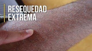 Seca piernas piel en las