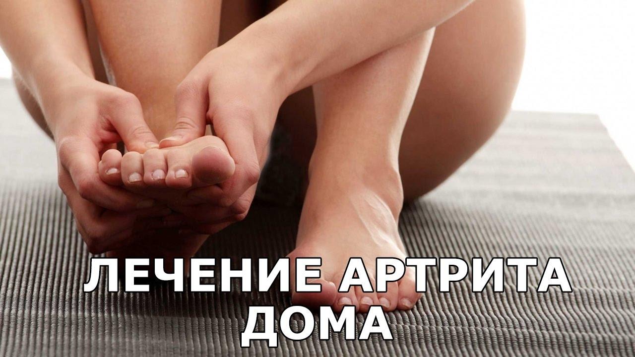 Лечение артрита в домашних условиях - YouTube