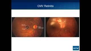 Dokter 24 : Pencegahan Infeksi TORCH (CMV).