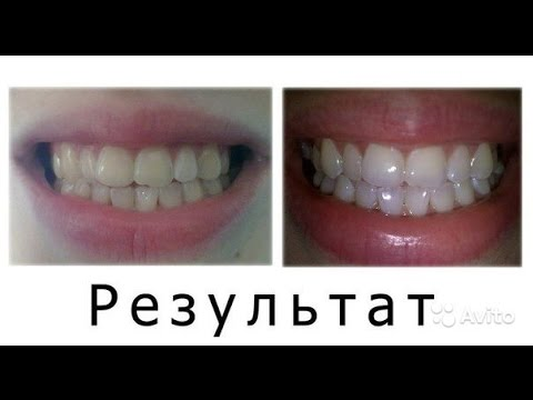 Does Whitening Toothpaste Really Work? - Crest 3D White Luxe .