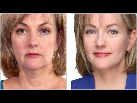 face liftfacelift without surgerynon surgical face liftlower face liftliquid face lift