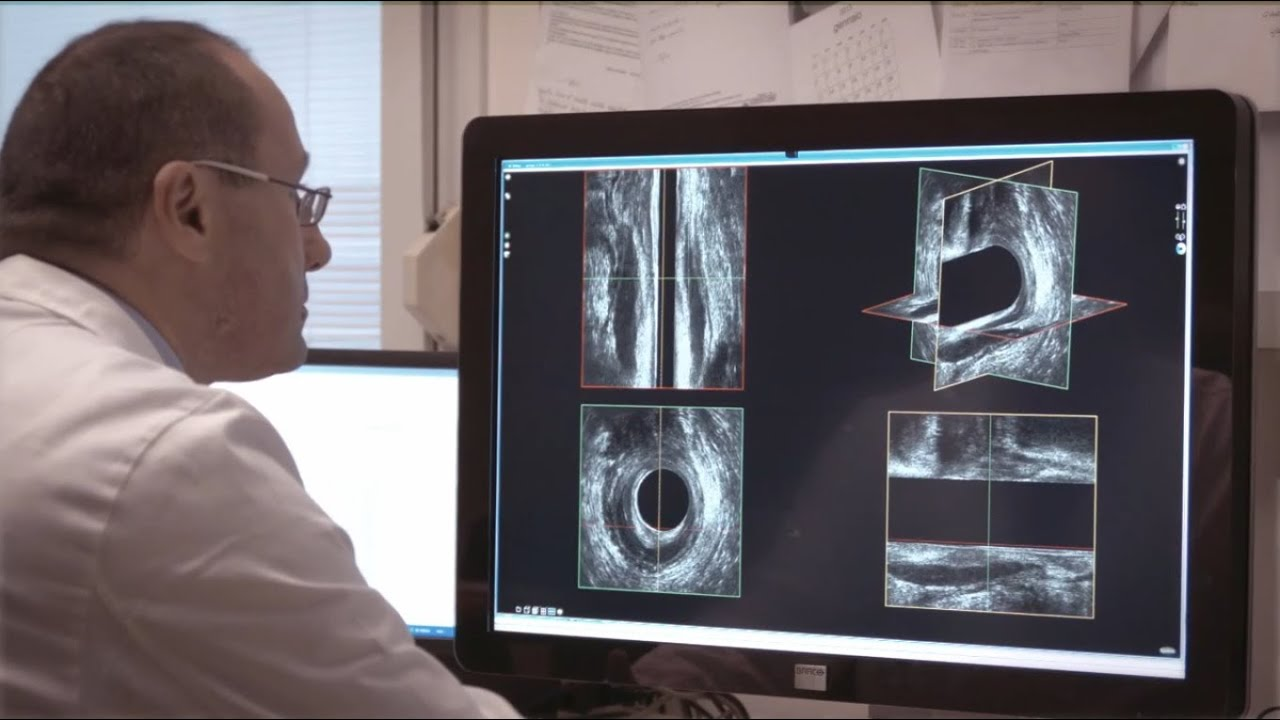 3d Ultrasound Imaging Of The Pelvic Floor Youtube