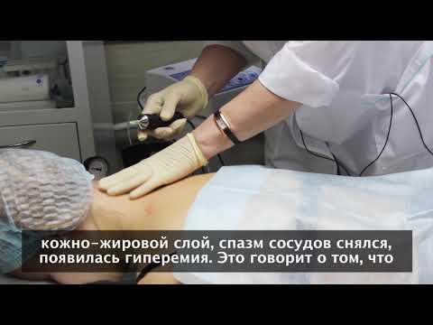 """Карбокситерапия в неврологии, медицинский центр """"Гармония"""", Екатеринбург"""