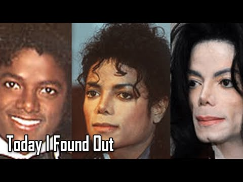 Why Michael Jacksons Skin Turned White as He Got Older