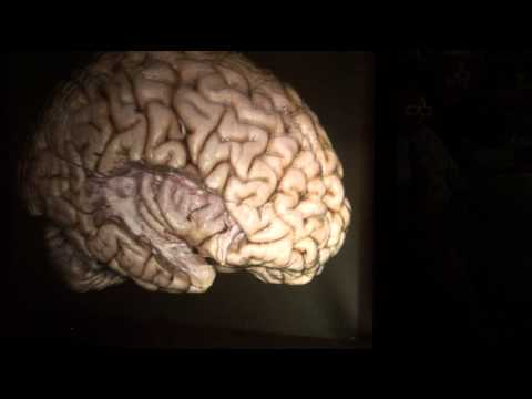 The Brain Surface: Sulci & Gyri by Guilherme Carvalhal Ribas, M.D.