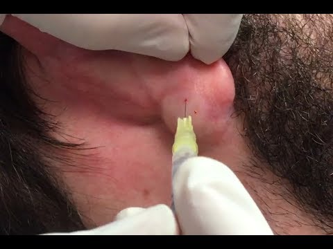Ear Cyst Removal & Wife's Video Reaction - YouTube