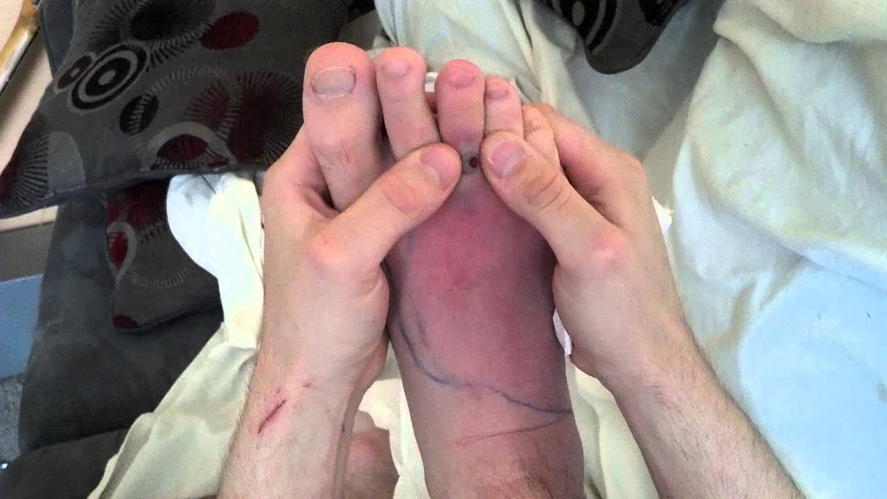 Cellulitis on the feet: how to get rid 40