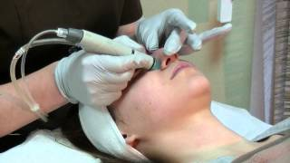 Гидропилинг, врач дерматолог-косметолог Елена Хлопова.(Фильм подробно описывает технологию проведения, особенности, показания к проведению процедуры гидропилин..., 2015-05-05T09:46:59.000Z)