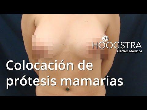 Colocación de prótesis mamarias (16013)