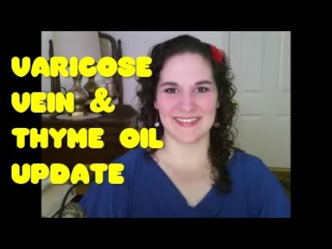 update:-how-thyme-oil-and-dmso-are-healing-my-varicose-veins