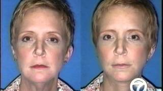 Little Rock Face Lift with Cosmetic Surgeon Dr. Rhys Branman Thumbnail