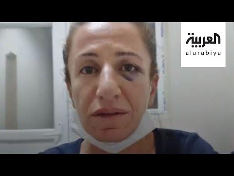 صور مؤلمة لتعذيب معارضة سياسية تركية  - 20:00-2020 / 6 / 30