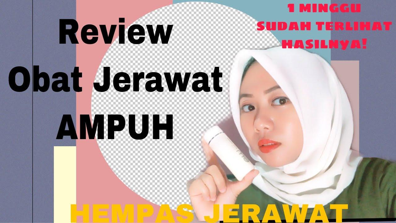 Obat Jerawat Ampuh    Acne Lotion Eva Mulia - YouTube