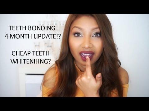 teeth-bonding-fixing-teeth-gap-without-braces-4-month-update