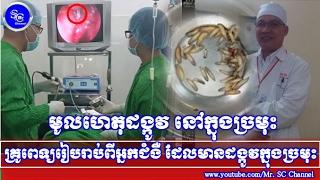 ដឹងមូលហេតុ! ដែលមានដង្កូវជាង៦០ក្បាលរស់ក្នុងច្រមុះ,Khmer Hot News, Mr. SC Channel,