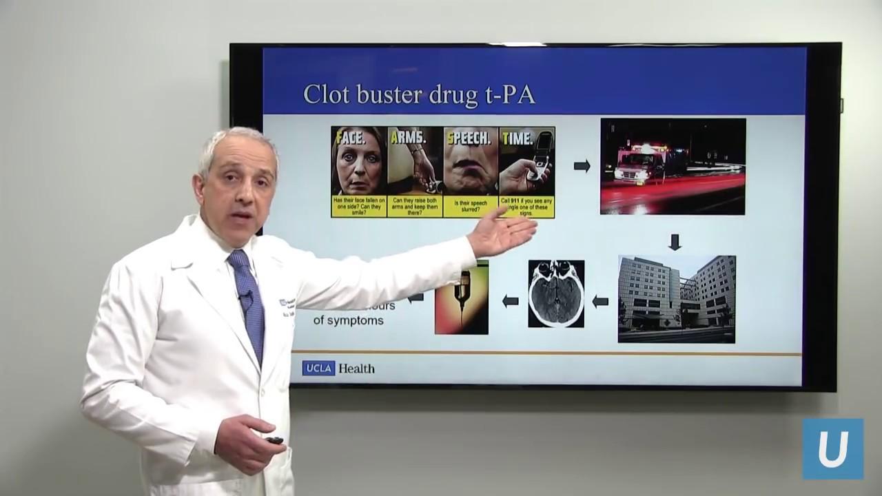Emergency Treatment for Ischemic Stroke - Dr  Reza Jahan | UCLA  Interventional Radiology