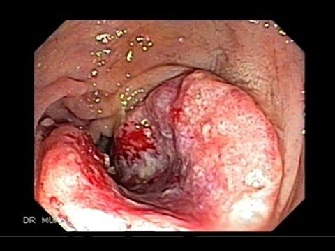 Triple Sincrónicos Adenocarcinomas del colon y Múltiples Pólipos