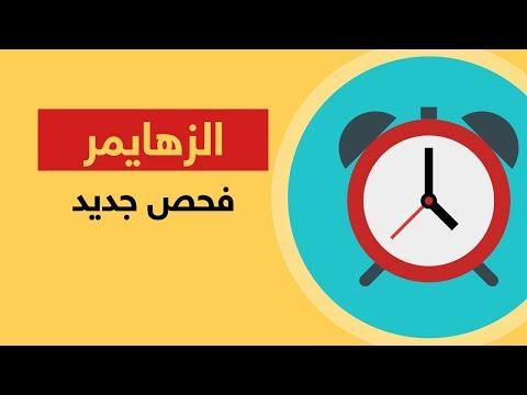 فحص جديد يكشف مبكرا عن -الزهايمر-  - 07:54-2018 / 12 / 13