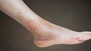 Mãos pés e nas inchadas veias