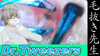 367 [200x Zoom] Detailed hair root Dr. tweezers 毛抜き先生の角栓や毛根
