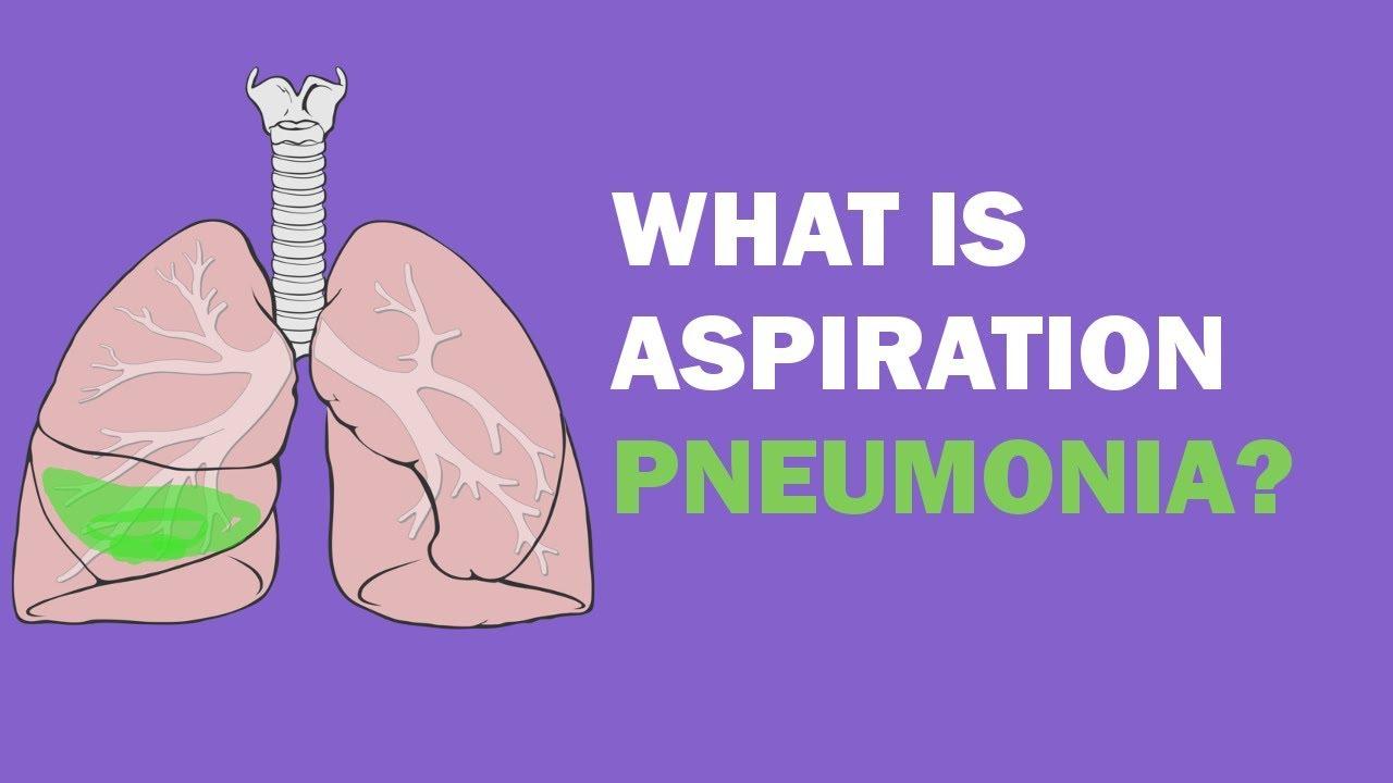 what is aspiration pneumonia