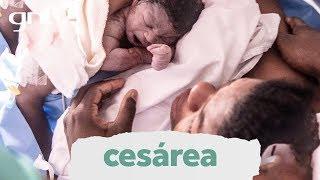 Parto cesárea após complicações na tentativa de parto normal | Partos Emocionantes | Boas Vindas