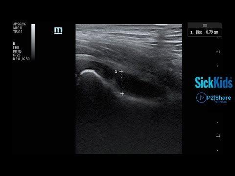 identifying-a-hip-effusion-using-pocus