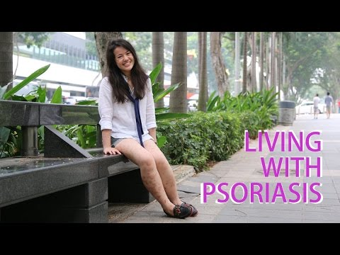 Living With Psoriasis | CNA Insider