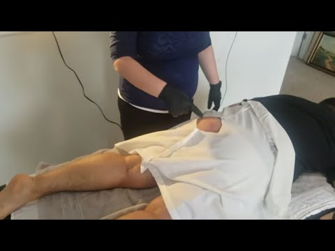 boil cyst popping home procedure by friends PART 1 of 3