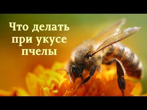 Что делать при укусе пчелы