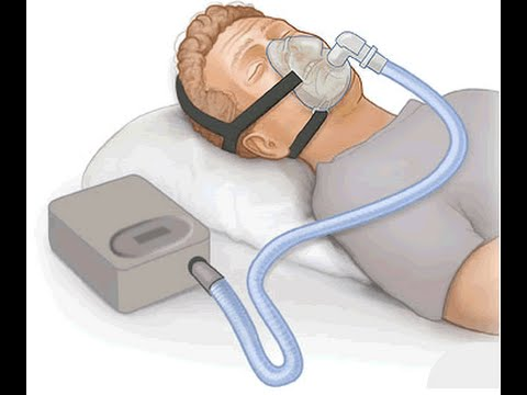 Cpap Therapy For Obstructive Sleep Apnea Youtube