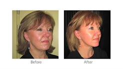 Short Scar Facelift London and UK Cosmetic Plastic Surgeon Ms Angelica Kavouni