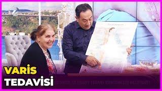 Varis Tedavisi Nasıl Olur? | Dr. Feridun Kunak Show | 27 Mart 2019