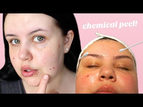 GETTING A CHEMICAL PEEL FOR MY ACNE SCARS | Vlog + Review