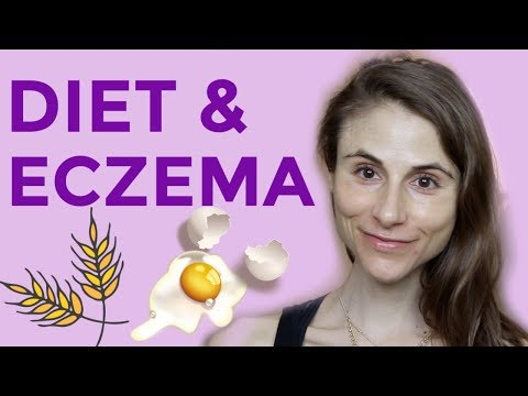 DIET & SUPPLEMENTS FOR ECZEMA: Q&A WITH DERMATOLOGIST DR DRAY