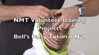nmt volunteer training projects bell s palsy tutorial n 1
