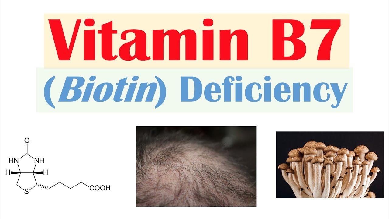 Download Vitamin B7 Biotin Deficiency   Sources, Purposes, Causes, Symptoms, Diagnosis, Treatment