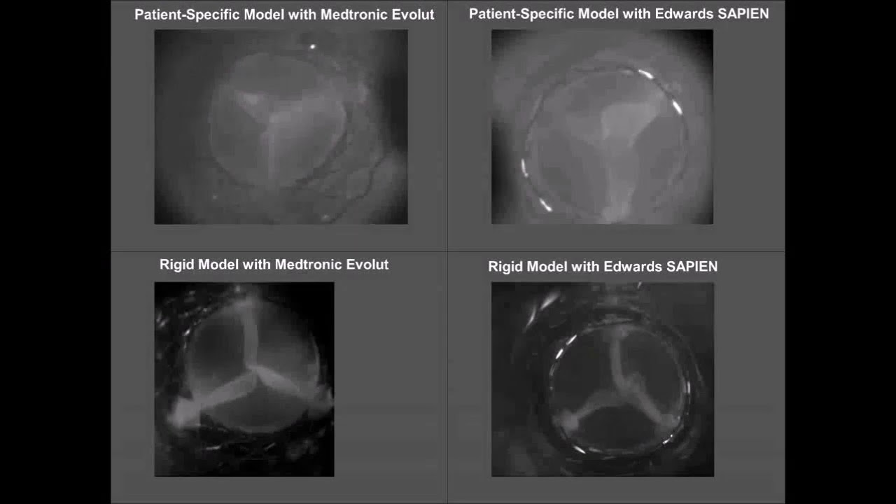Preview image for Biomedical Engineering Biofluids Lab Aortic Valve Models video