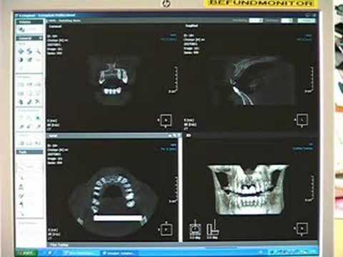 DVT-Digitale Volumen Tomografie in der Zahnarzt-Praxis
