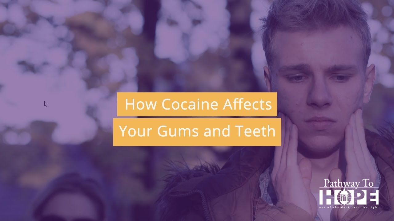 Dental Health: How Cocaine Affects Your Gums and Teeth