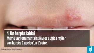 6 maladies que vous pouvez contracter en embrassant quelqu'un