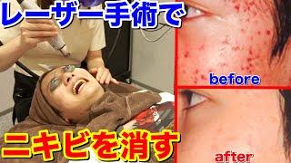 【ニキビ手術】肌荒れを高速で治すレーザーで美肌になりすぎた