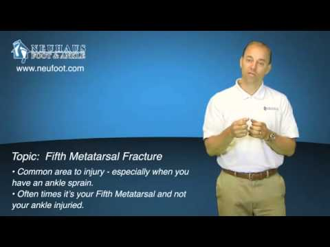 What is a Fifth Metatarsal Fracture?