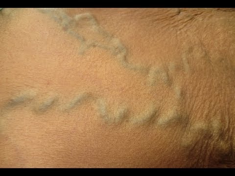 Filling Of Veins On Abdomen