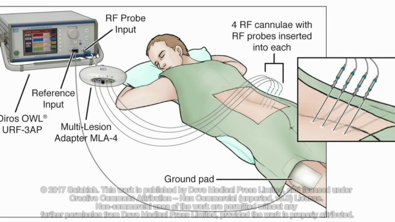 Introduction of an alternative radiofrequency technique for ...