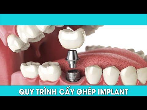 Mất răng nên trồng implant hay làm cầu răng sứ?
