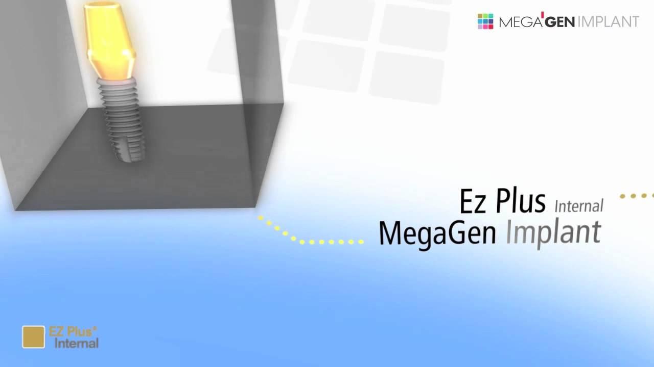 Narrowcasting MegaGen Implant