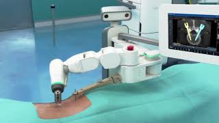 Robotic spine surgery with Mazor X