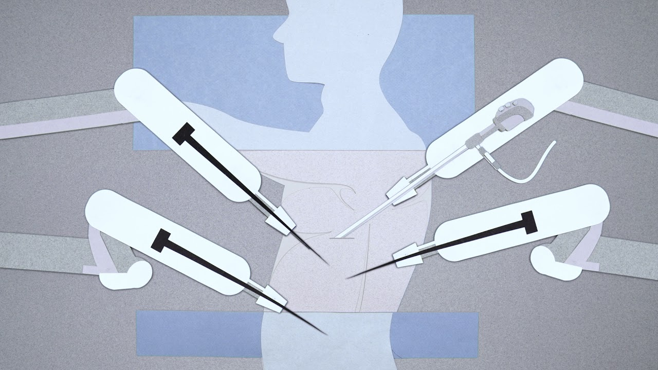 Facing Lung Cancer: Surgery—What to Expect?