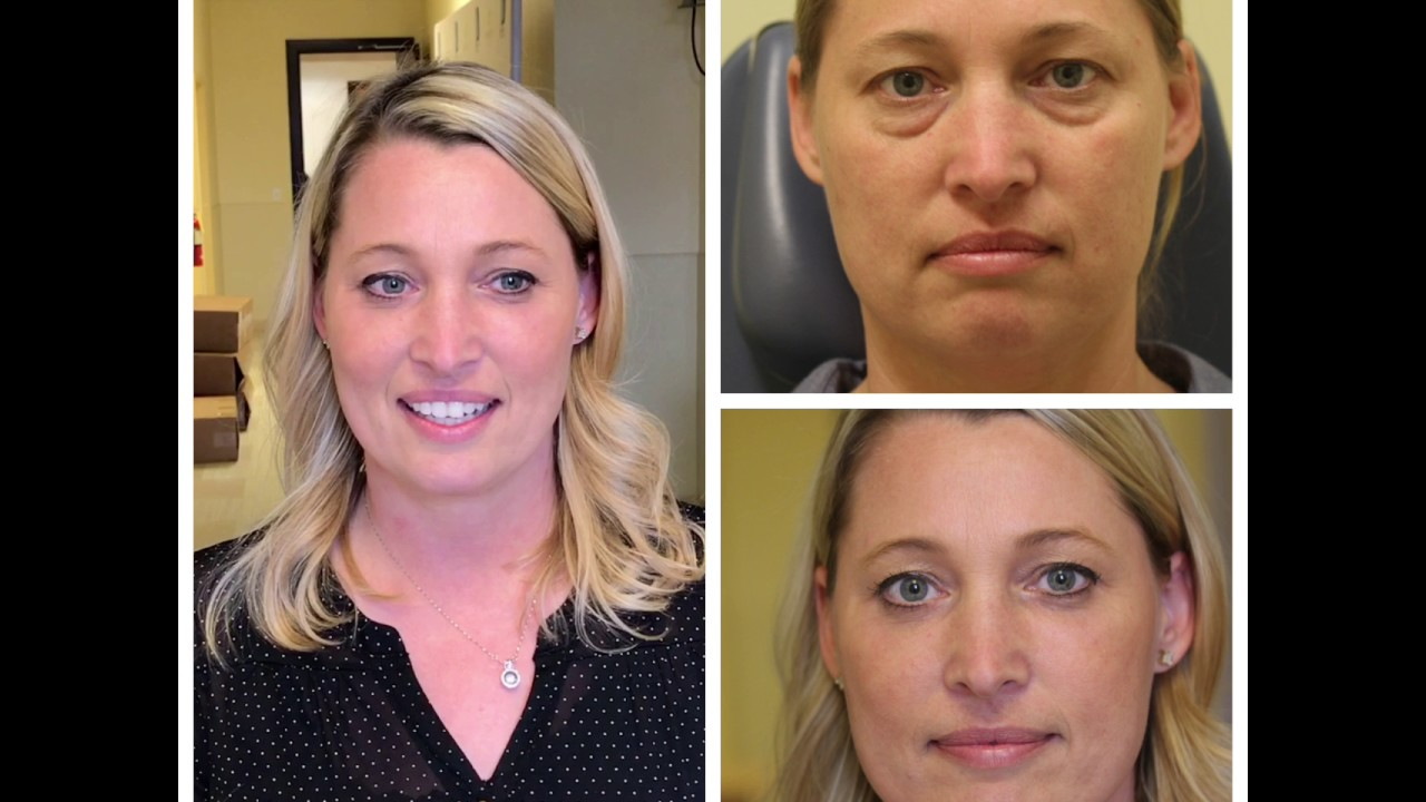 Upper blepharoplasty healing process | Joseph Walrath, MD |Lower Blepharoplasty Recovery Photos
